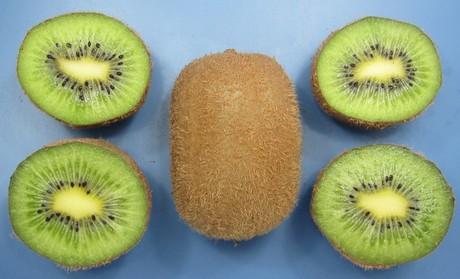 Il Kiwi A Polpa Verde Z5Z6.
